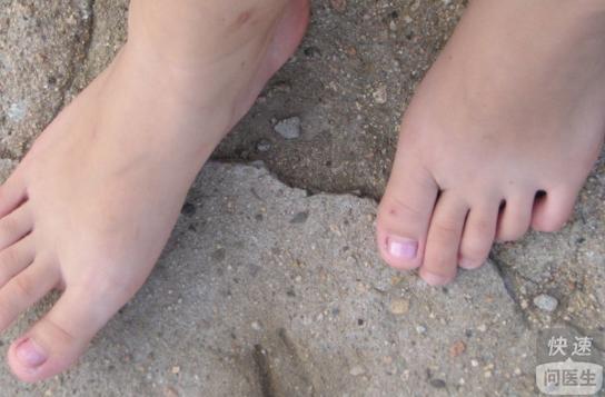 脚部白癜风的治疗方法价格 白癜风的治疗方法